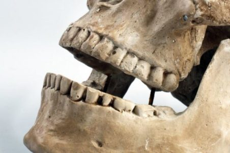 Helsepartiet vil få tannpleie inn under frikort